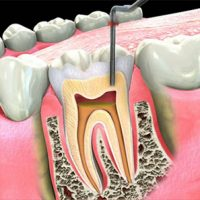 Endodontics-root-canal-treatment